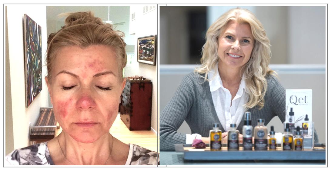 Qēt Botanicals Lisa Brill skin before & after